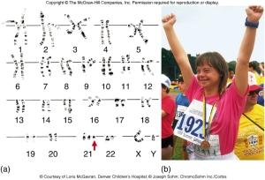 down-syndrome-cariotipo-y-foto-zo-utexas-edu