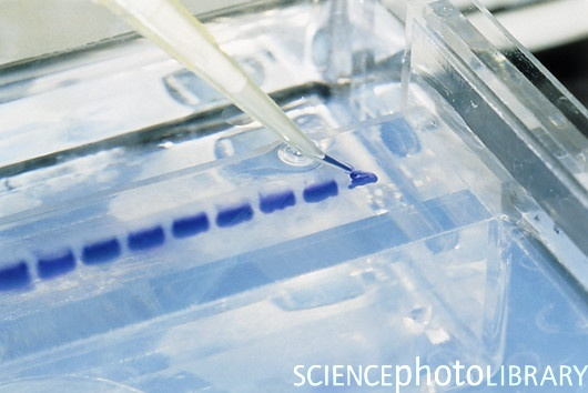 Fuente: Science photo Library. Estos son los pocillos donde se siembra el ADN (con una micropipeta), se ven azules por otro colorante que se usa para ver por donde esta migrando el ADN